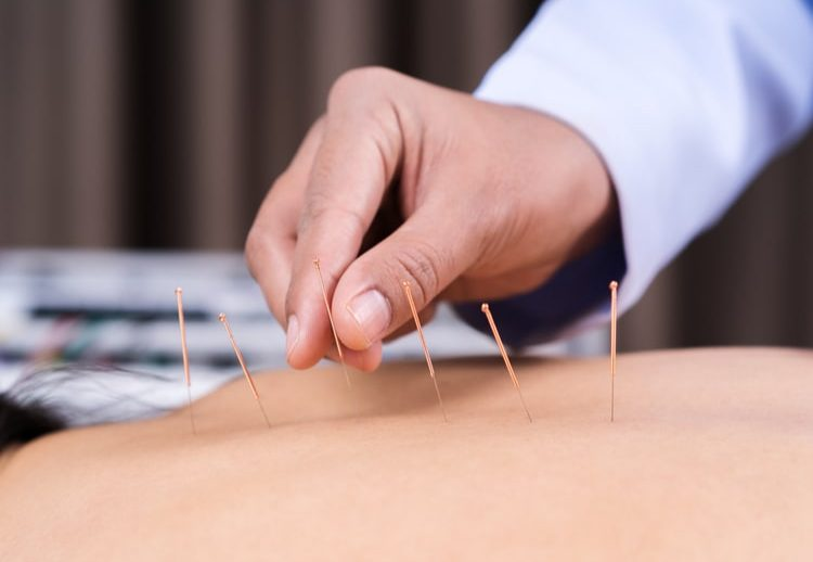 Acupuncture Pascoe Vale